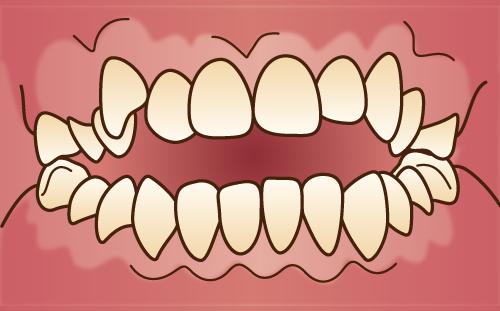 当院の開咬の矯正方法(大人の矯正)